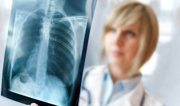 A female doctor looking at an xray